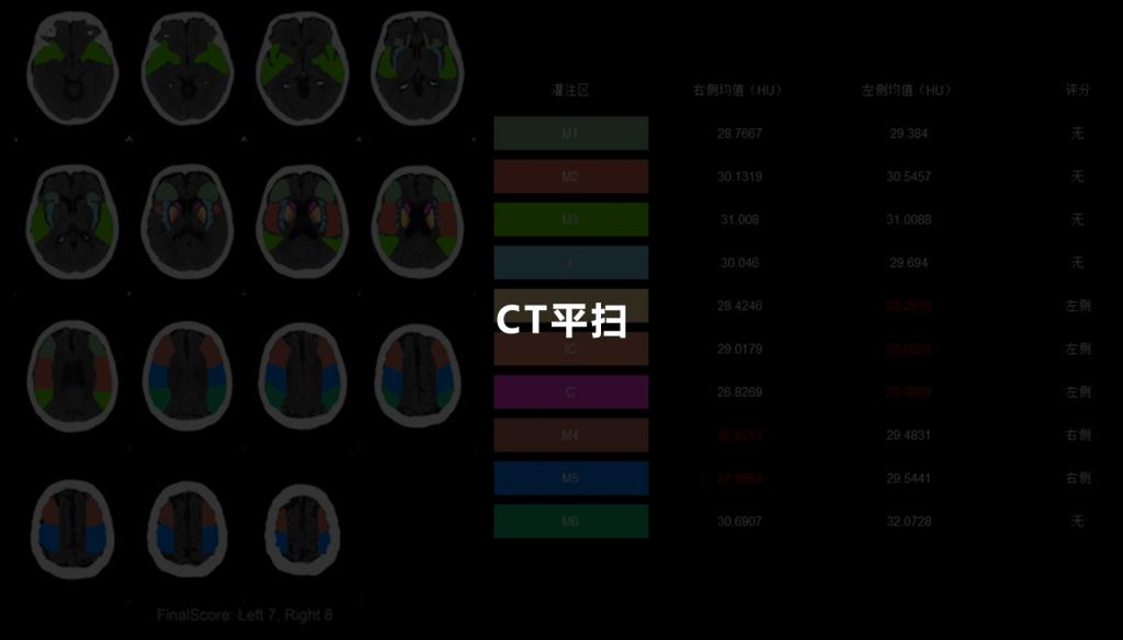 CT平扫1